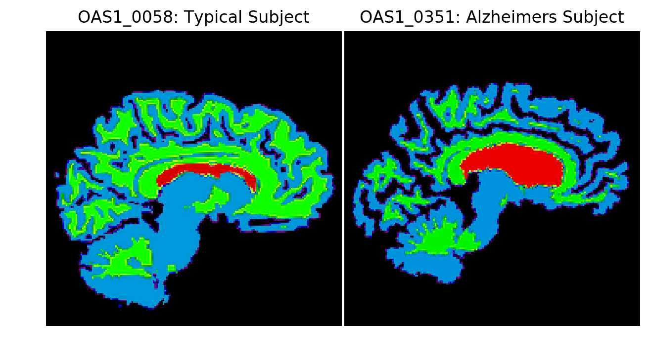 Sample Segmentations of Alzheimer's and Typical Subject