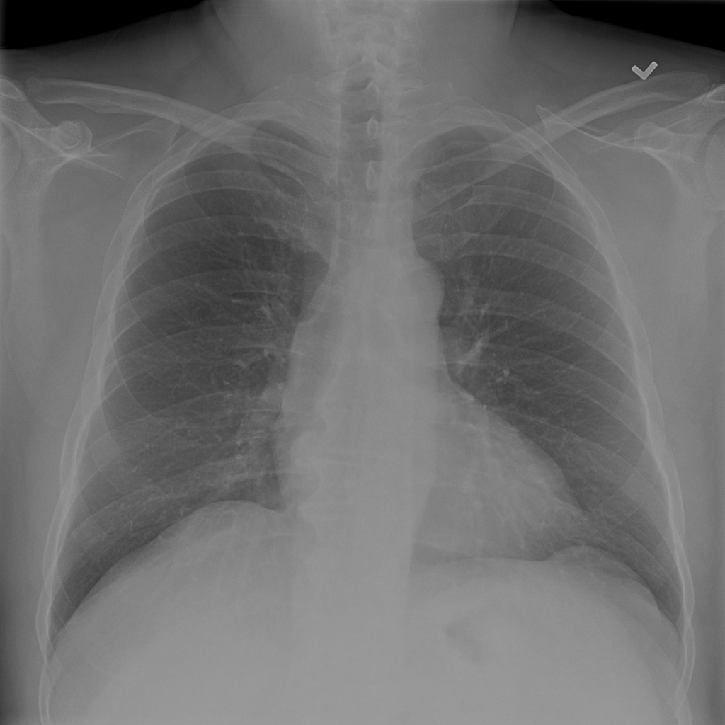 X-ray chest image